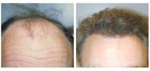 Before & After Hair Restoration in Virginia