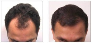 Before & After Proof Hair Restoration in Virginia
