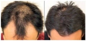 Before & After Picture Hair Restoration in Virginia